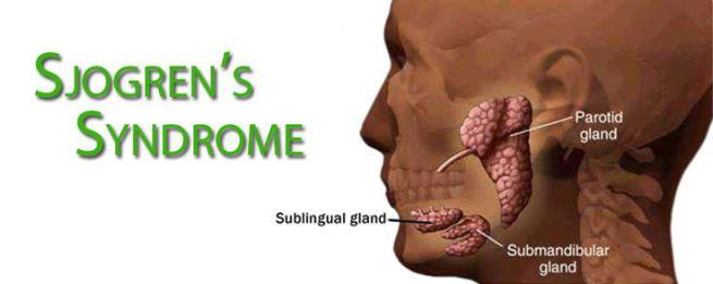 Sindrome-Sjogren